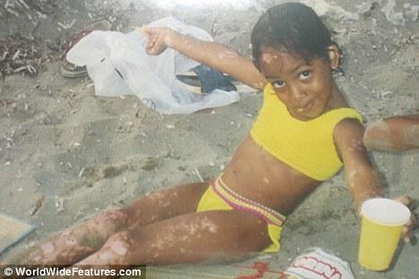 黑人女孩患白癜风全身皮肤变白