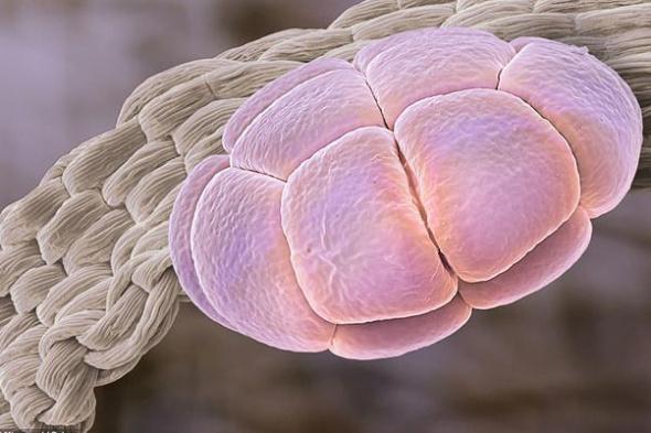 合欢树(亦称木棉树)的花粉