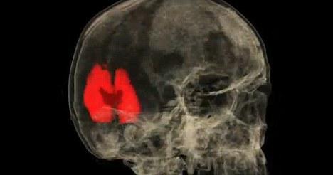 在未达到性高潮时,只有少数大脑区域处于活跃状态,而后随着性高潮的到来扩散到80多个大脑区域