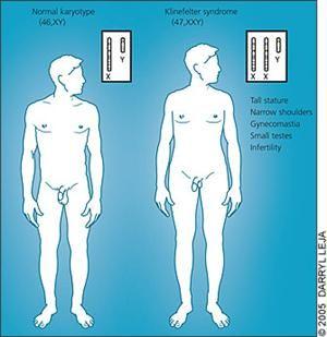 克林菲尔特综合征,其性染色体为XXY。图片来自www.health-reply.com