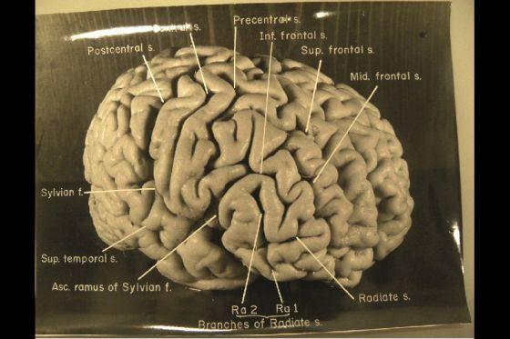 爱因斯坦的独特大脑结构