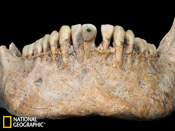 牙齿上的一块玉石表明了这位大屠杀死者身前的地位高贵