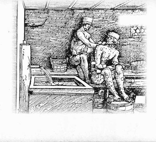 中世纪,一个侍者在清洗麻风病患者的褥疮。图片来源:SPL/SCIENCE SOURCE