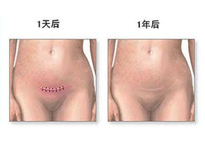 一年后切口与一天后切口比较