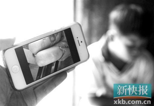 受伤的小涛腿上有明显淤青。新快报记者 毕志毅/摄