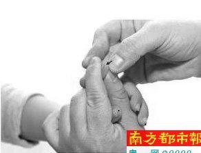 针刺放血是中医临床帮助退热的外治疗法之一,调血理气使脏腑气血调和,恢复正常功能。