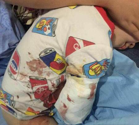 小男孩右手手肘以下被绷带包扎得严严实实