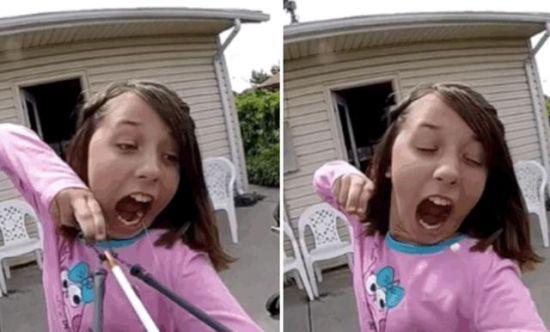 美国11岁女孩用弓弩拔牙震惊网民