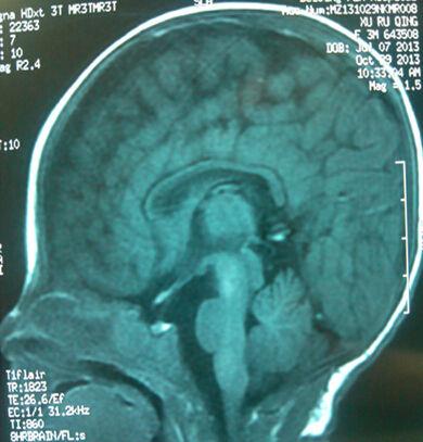 正常儿的MRI,有胼胝体