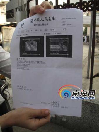 王小姐经过人流手术后,在12月1日的B超显示腹中婴儿还存在 (南海网记者 陈望摄)