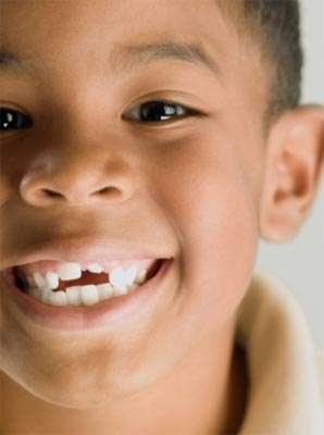 乳牙若影响恒牙发育应早拔