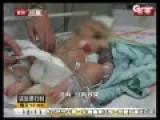 两月男婴遭虐待住进ICU 父亲称想要女儿