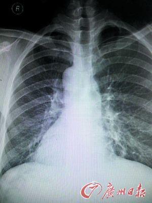 镜面人 心脏长在右边图片