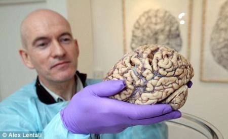 英国私人美术馆首次展出人脑 引发争议(组图)