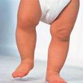 定期检查孩子发育状况