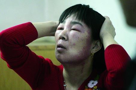 化妆品过敏 抹了点化妆品 女士眼睛肿得剩下一