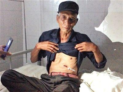 缅甸难民杨开顺撩起上衣展示在炸弹袭击中留下的伤疤。