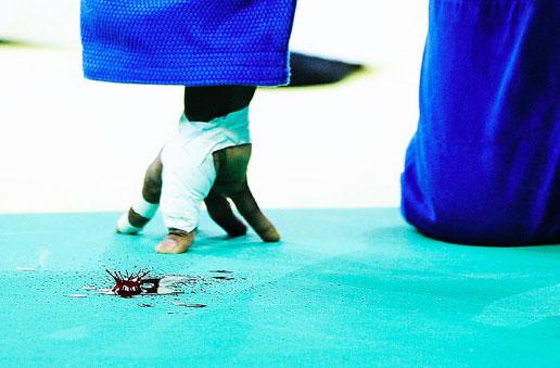 图文:体育专题单幅一等奖-奥运会上受伤的柔道运动员