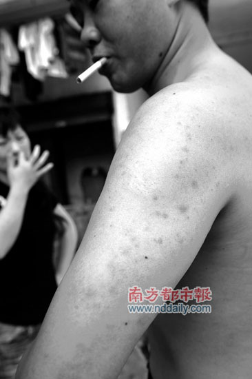 深圳盐田出现蜱虫咬人暂未有病例报告(图)