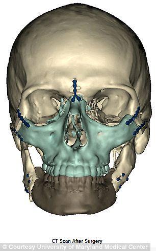 今天做了脑部ct 医生说很大可能是脑出血.各位帮我看下吧.图片