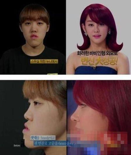 韩国整容真人秀爆红 选手整容后像张曼玉图