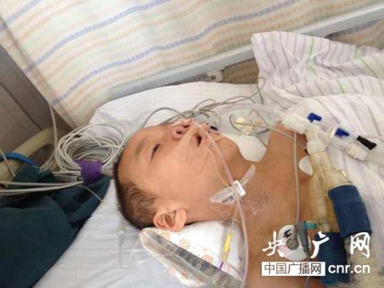吉林白山3人注射狂犬疫苗后昏迷 卫生局 属正常现象