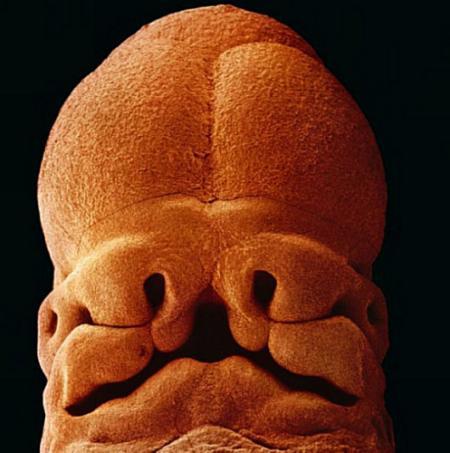 5周大的胎儿。此时的胎儿只有大约9毫米长。面部正在发育,嘴巴、鼻孔和眼睛正在形成。