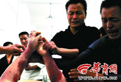 犯人突然病重身亡身上被发现大片疑似伤痕(图)