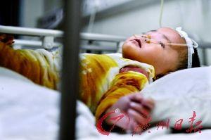 2岁的小婷婷全身包裹着,痛苦地躺在病床上。记者 何波 摄