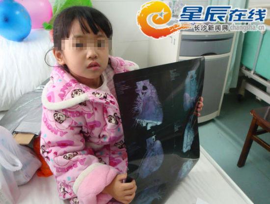 质料图片:上一年12月,小雅莉入住在湘雅二病院。