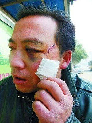 受伤村民。本报记者 张学江 王钊 摄