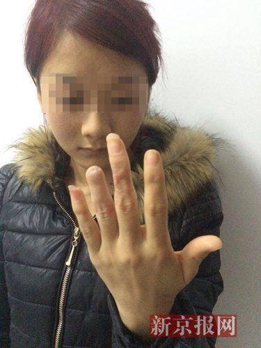 庆阳警方表示,经法医鉴定,杨丽花为轻伤二级。家属供图