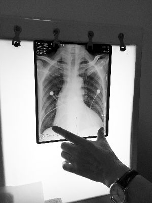 拍片显现,李某的心脏已占胸腔80%以上的时间