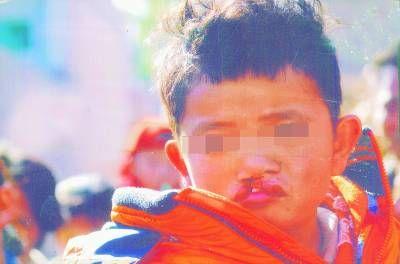 郑文燕在手术前。 图片由伊美尔长岛医院提供