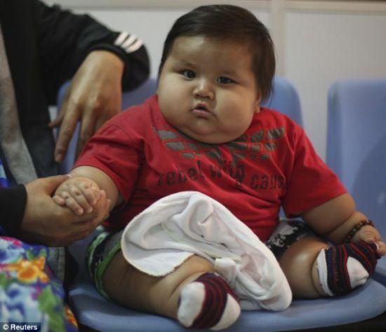 圣地亚哥・门多萨才8个月大,但是体重竟然近20公斤,这相当于6岁大儿童体重。(图片来源:英国媒体)