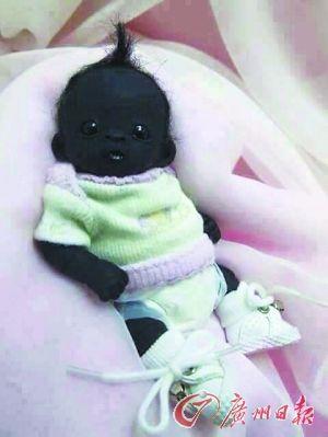 世界上最黑的孩子_世界上最黑的孩子,因全身皮肤黝黑而受到质疑