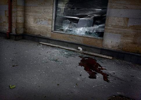 组图:一般新闻组照二等奖-格鲁吉亚武装冲突(2)