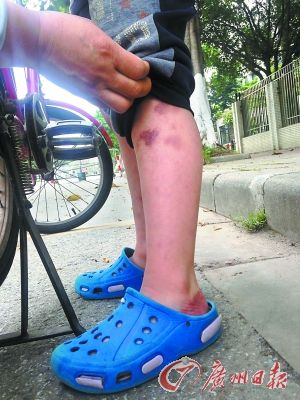 小麦腿上的伤痕。