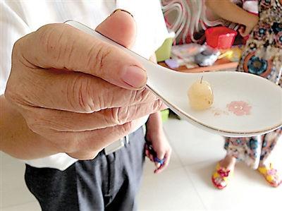 2岁女孩吃颗陈皮糖 里面有根硬铁丝