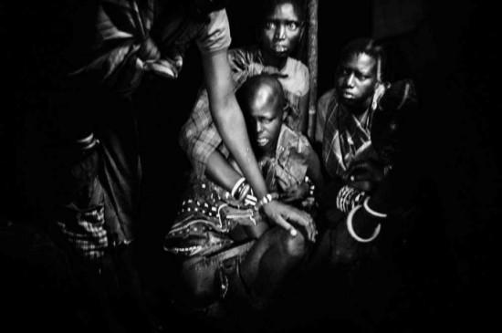 非洲割礼后的图片
