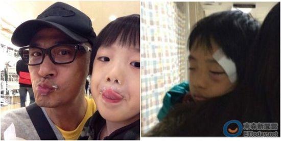 吴镇宇儿子(右)不慎撞伤眼角,至今视力未恢复。