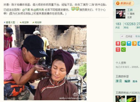 微博联播:《走出硝烟》爆炸于震颜丙燕等受伤