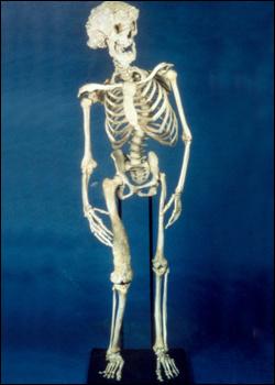 """杰克逊的六大流言:他收藏了""""大象人""""的骨头"""