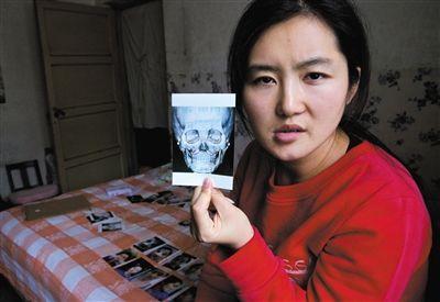 靳魏坤整容后从三维CT上发现自己鼻子假体倾斜;左右脸不对称,颧骨一宽一窄,一高一低;下颌切得坑洼不对称;自己原本最满意的下巴被医生后缩以后也是歪的。