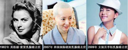 死去的女明星名单_因乳腺癌去世的中外女明星们