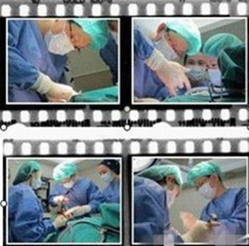 下颌角手术进行中