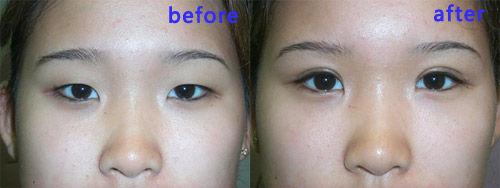 割双眼皮手术效果前后对比-对症下药 不同双眼皮术失败解决方法图片