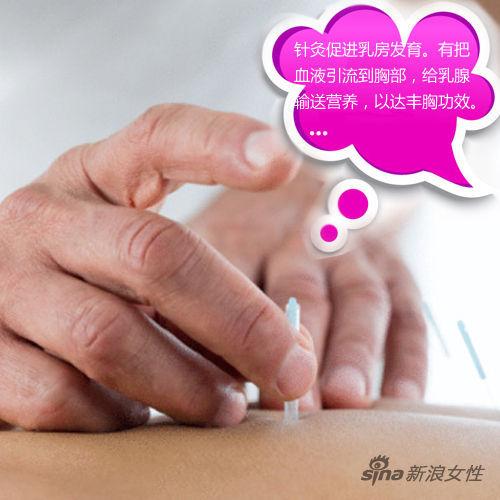 穴位针灸按摩