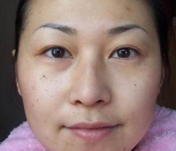 惯例:素颜照片.斑点和痘印明显,眼袋和黑眼圈都有点严重.