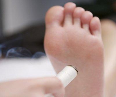 艾灸多用于辅助治疗